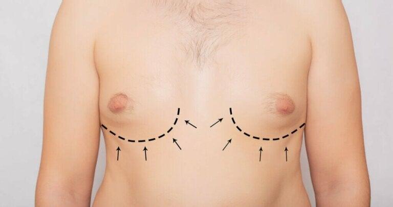 Gynecomastia: Symptoms, Causes and Treatment
