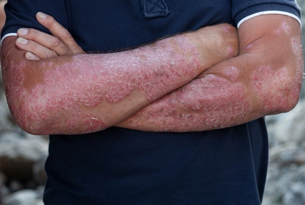 All About the Diagnosis of Psoriasis