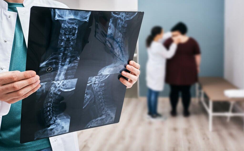 Escoliosis: síntomas, causas y tratamiento