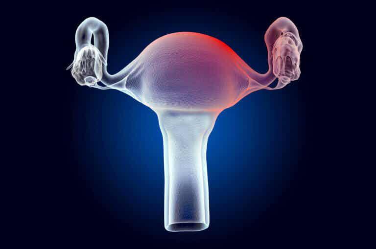 Miomas uterinos: síntomas, causas y tratamiento