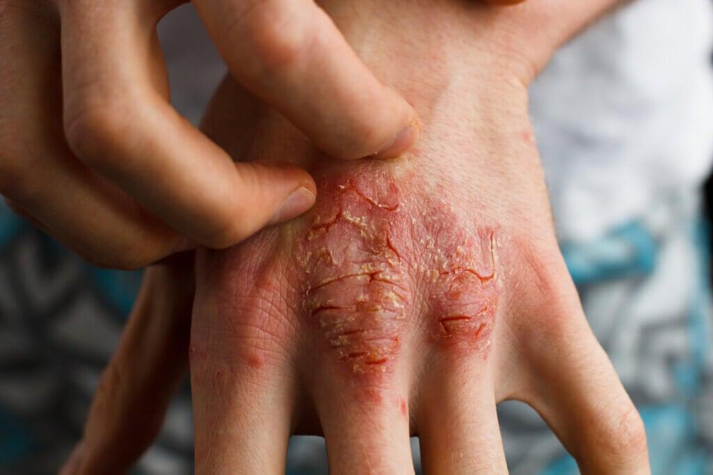 Síntomas de psoriasis en la mano.
