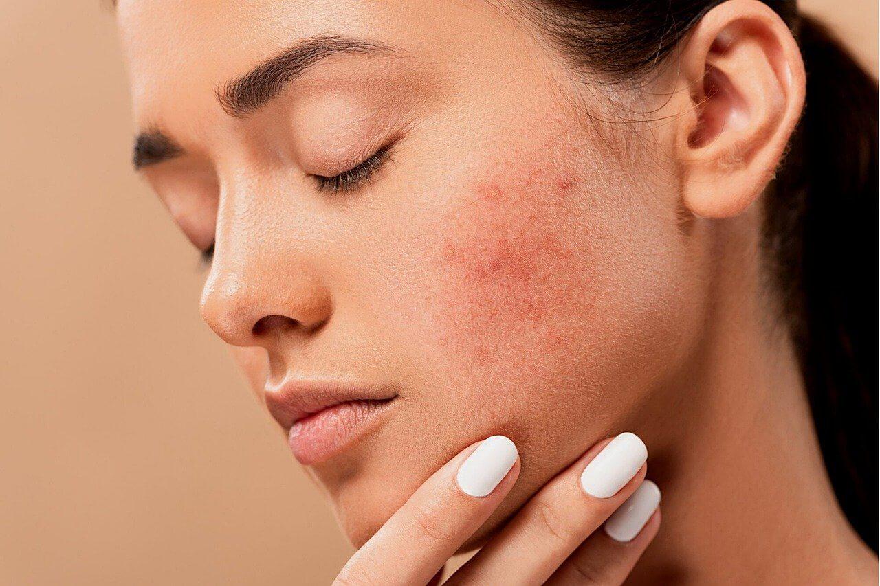 A acne pré-menstrual é muito comum.