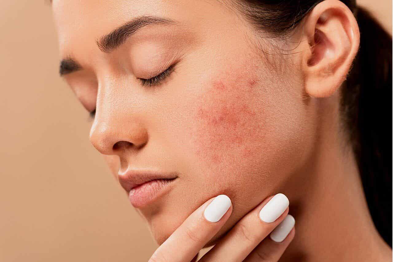 El acné conglobata es una forma grave de la enfermedad
