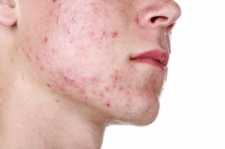 Acne conglobata: cause, sintomi e trattamento