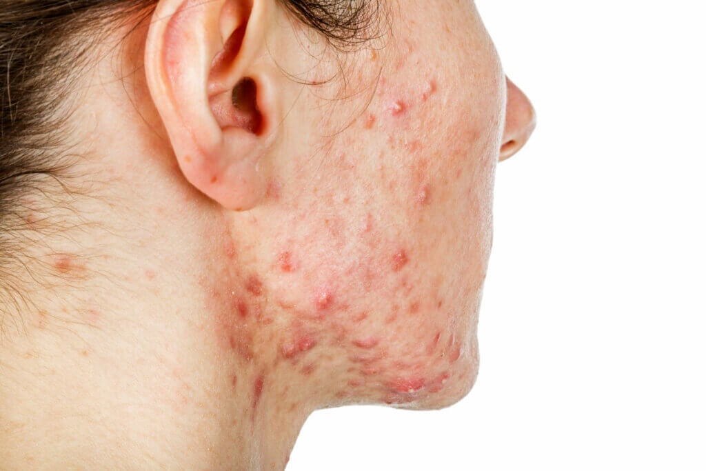 Nodular Acne: Everything You Need to Know