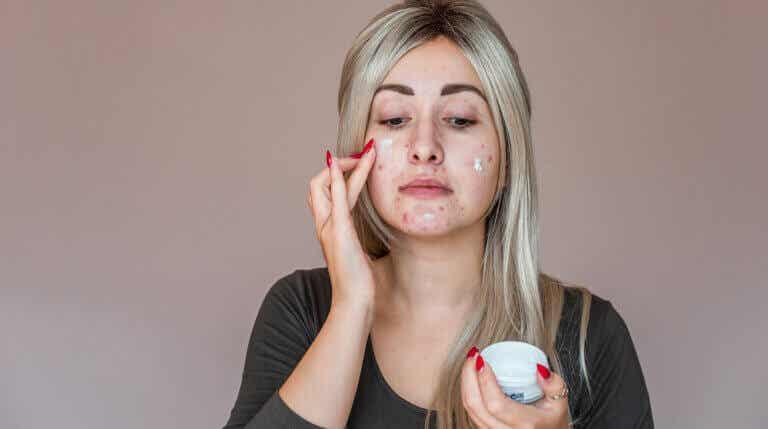 Causas más comunes del acné en adultos