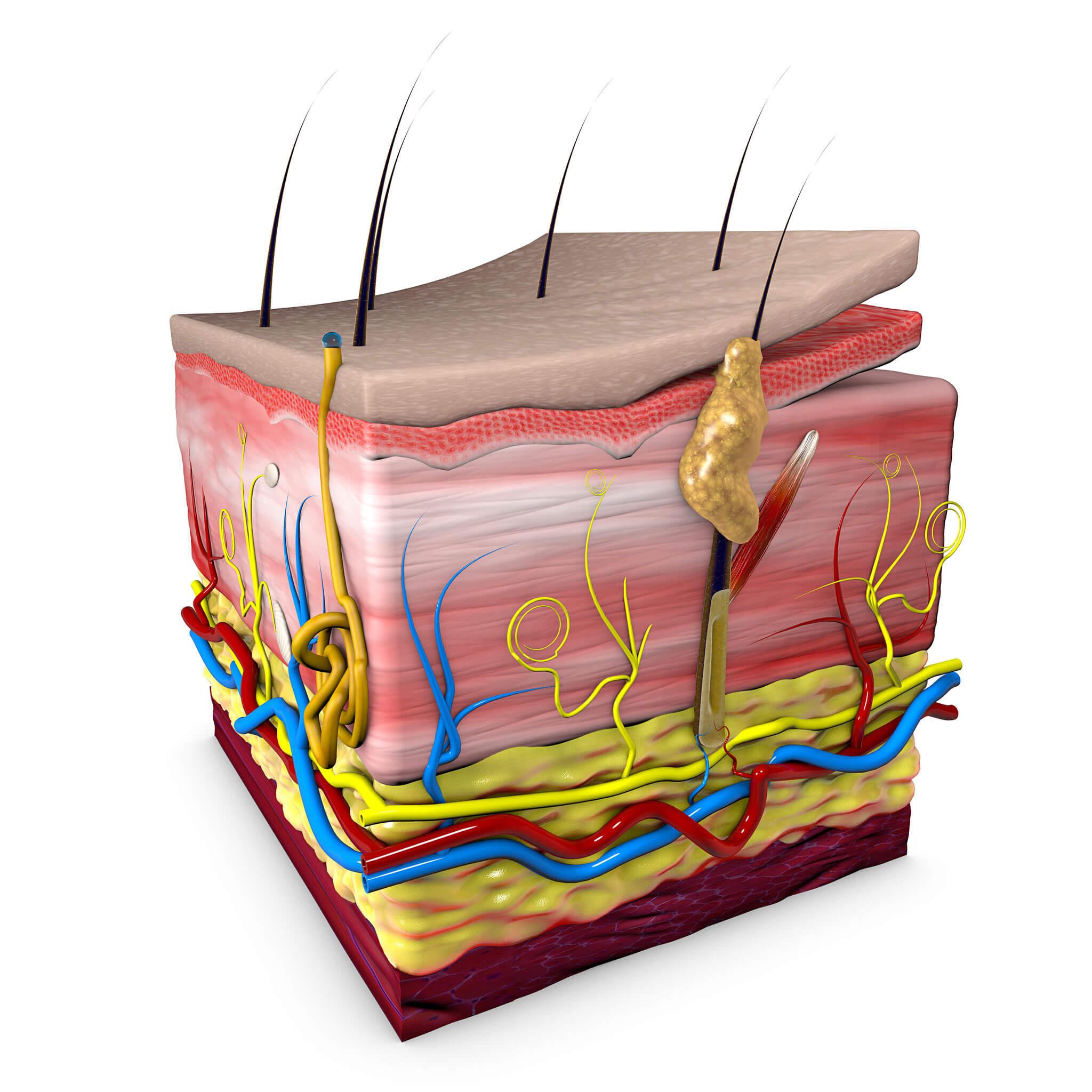 La hiperpigmentación posinflamatoria se relaciona con la melanina