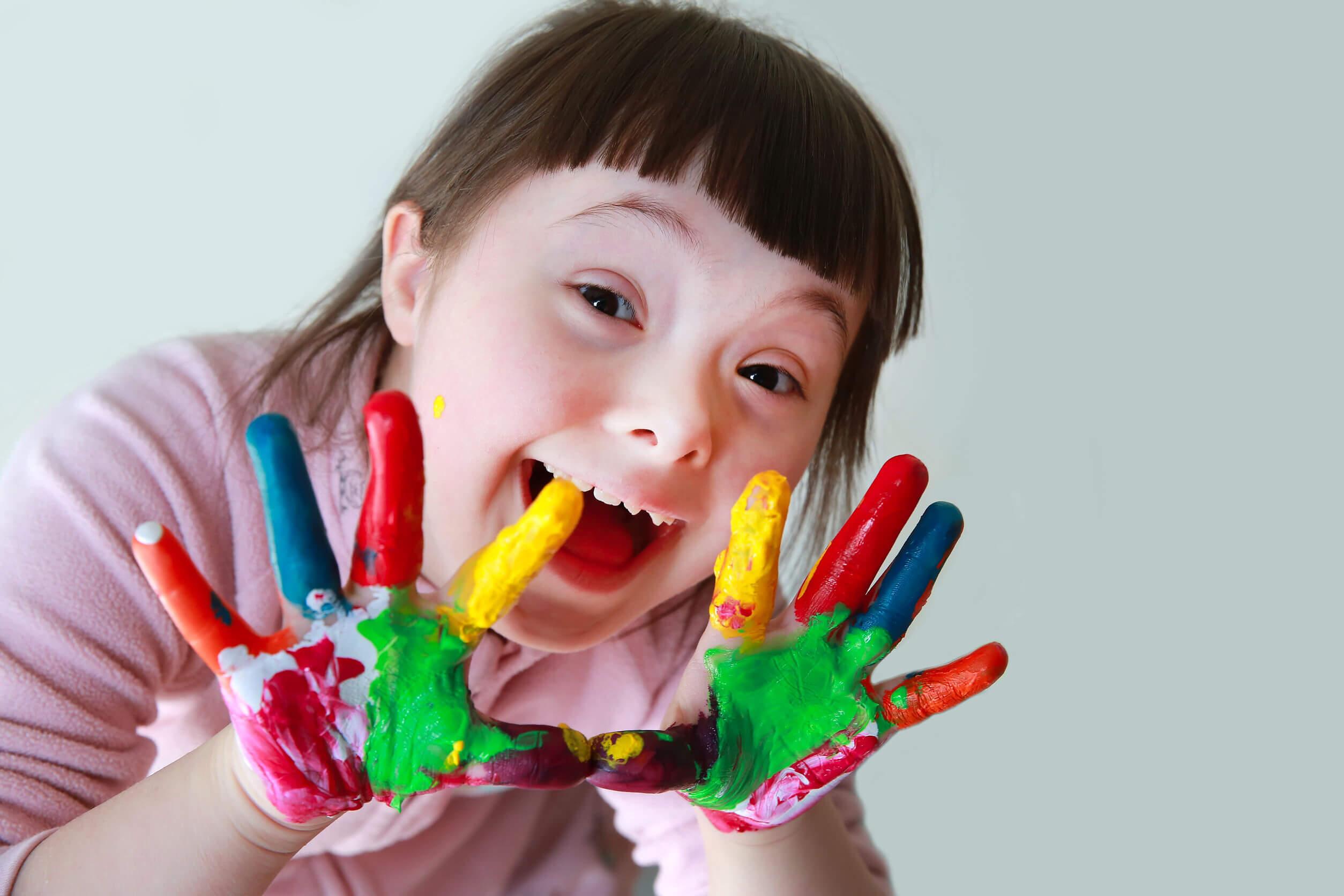 Sintomi della sindrome di Down: caratteristiche del viso