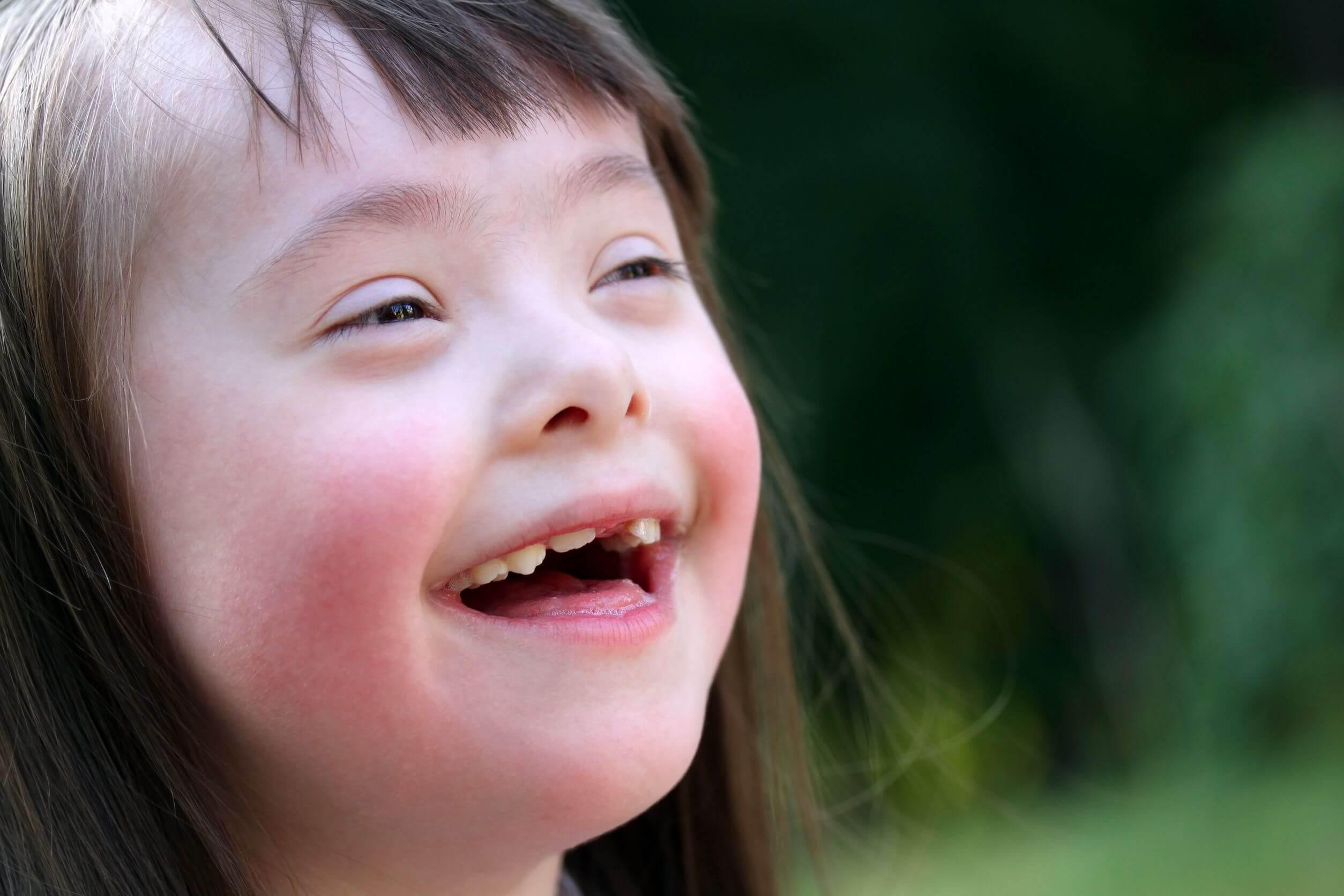 Le cause della celiachia includono la sindrome di Down