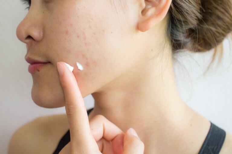 ¿Cómo tratar el acné con peróxido de benzoilo?