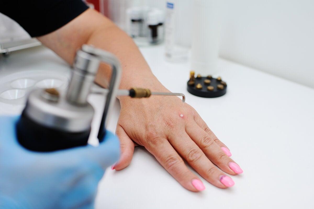 Tratamiento del virus del papiloma humano (VPH)