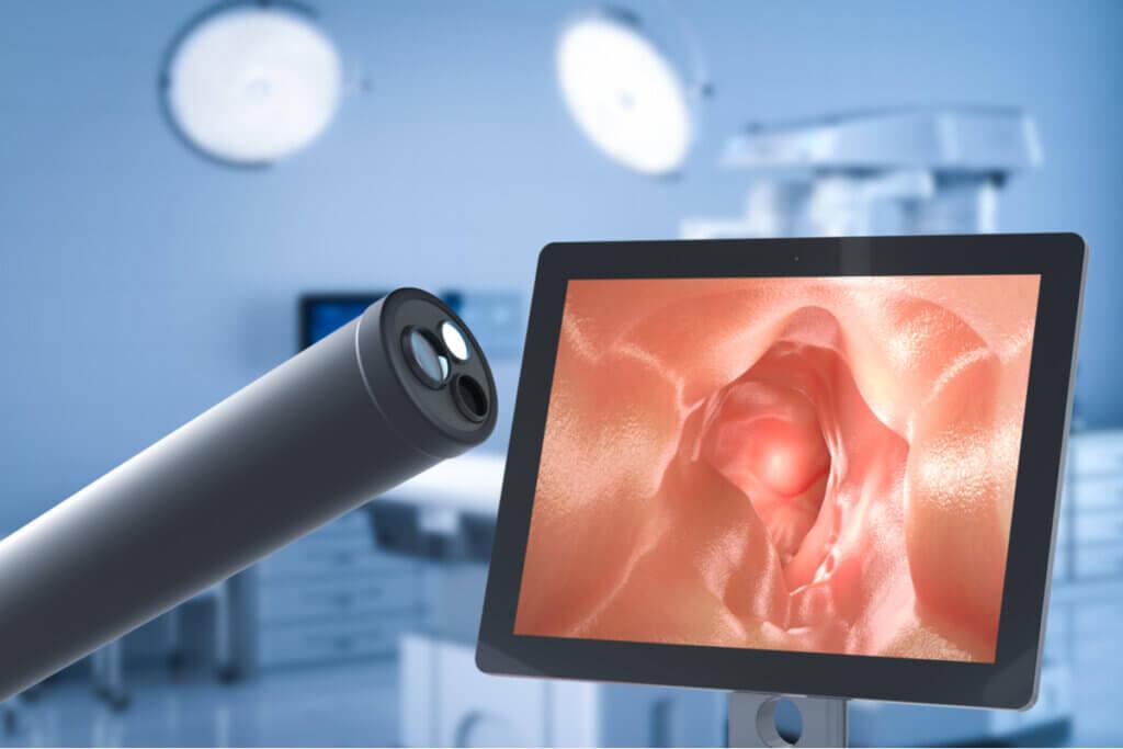 Endoscopia cuando se diagnostica celiaquía.
