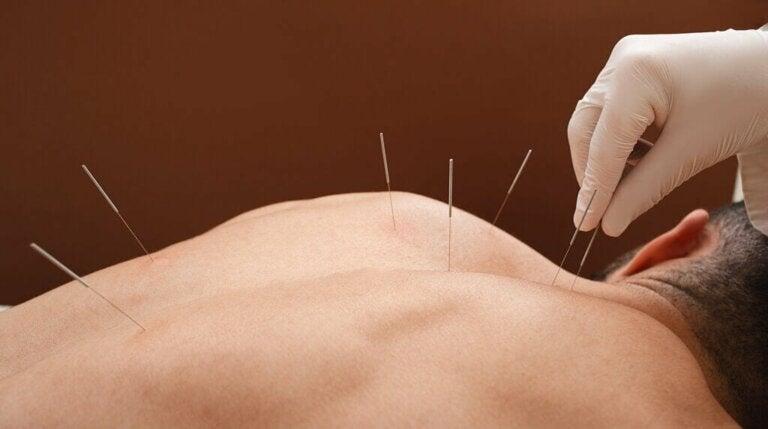 Acupuntura para tratar fibromialgia: o que diz a ciência