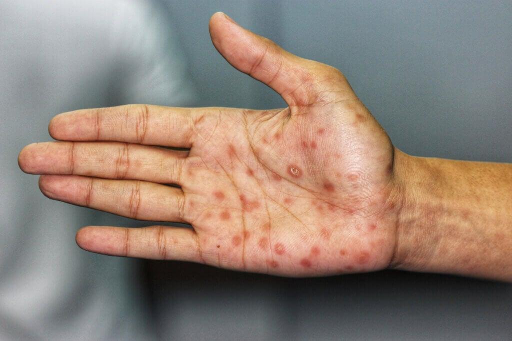 Manchas en las manos por sífilis secundaria.