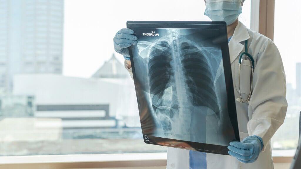 Clasificación de la OMS de la hipertensión pulmonar