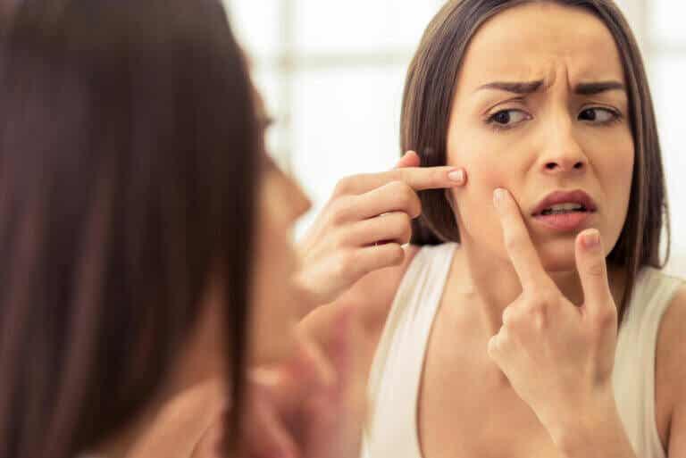 ¿Qué es y cómo se trata el acné leve?