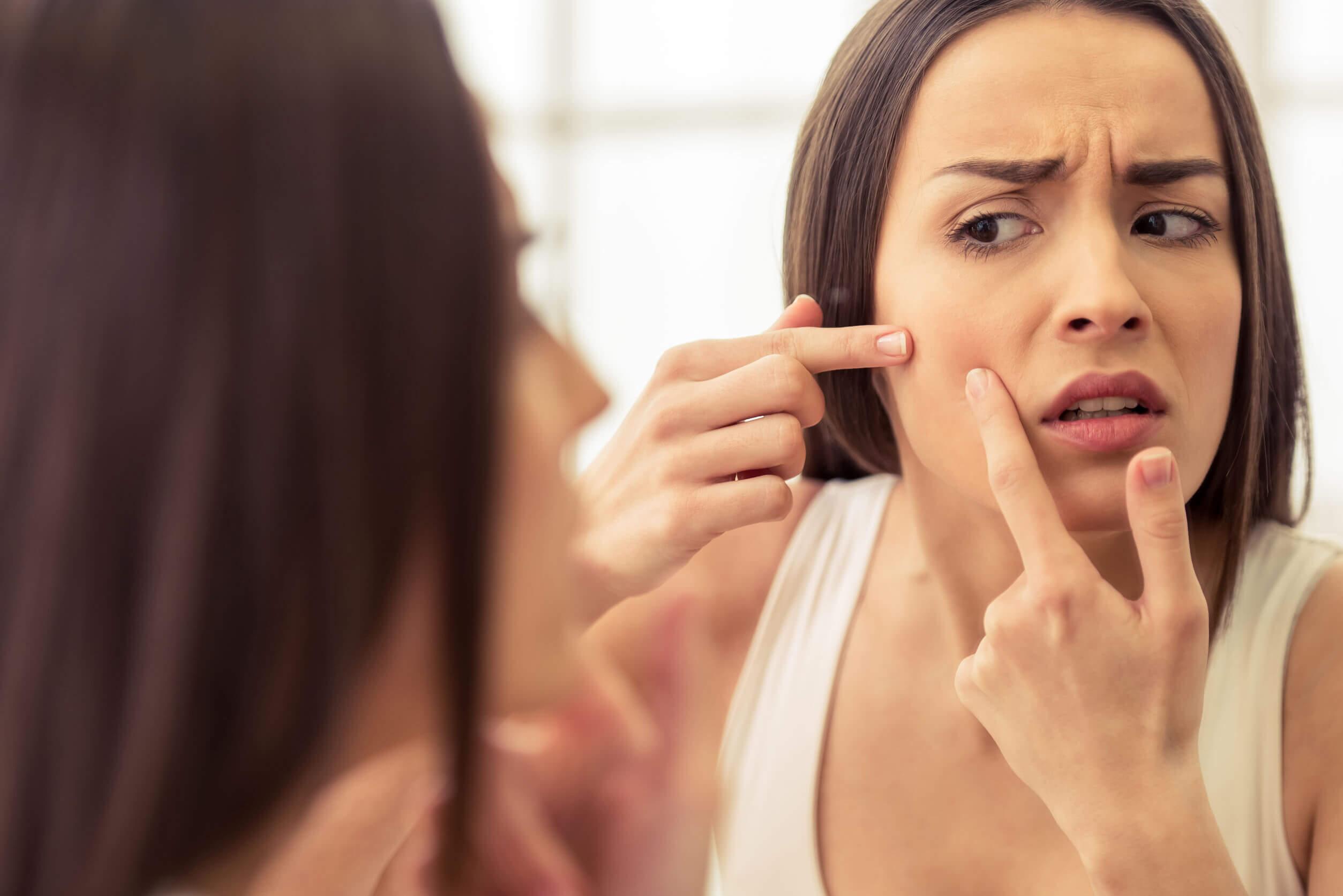 Os sintomas da SOP incluem acne.