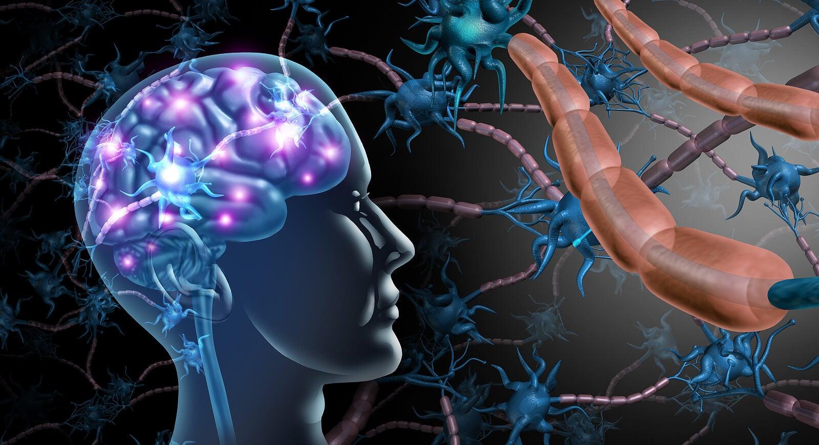 Las causas de la esclerosis múltiple incluyen reacciones autoinmunitarias
