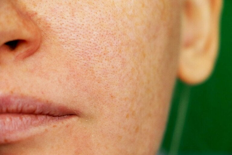 É possível reduzir os poros abertos?