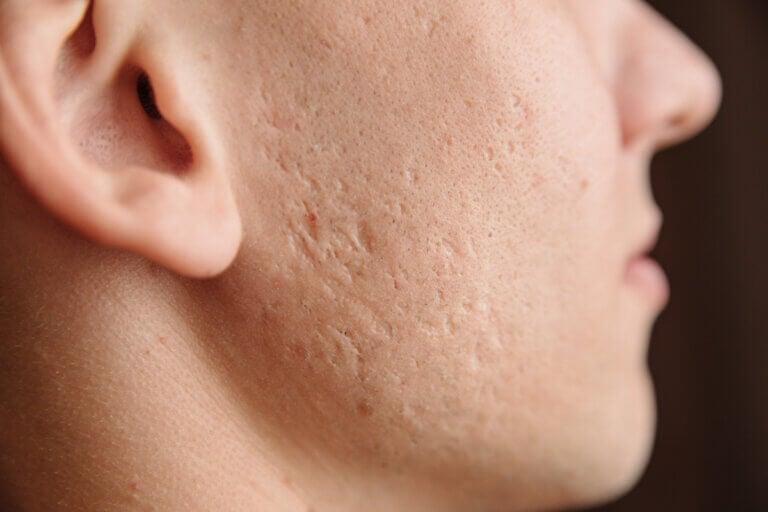 Cómo prevenir las cicatrices por acné