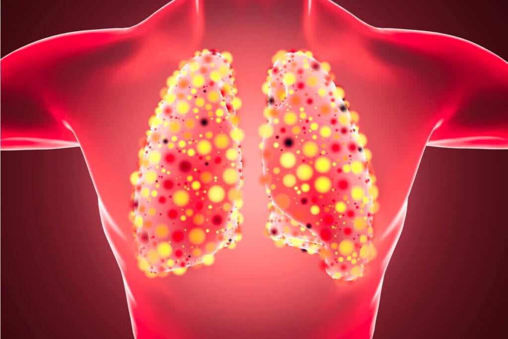 Neumonía bilateral en los pulmones.