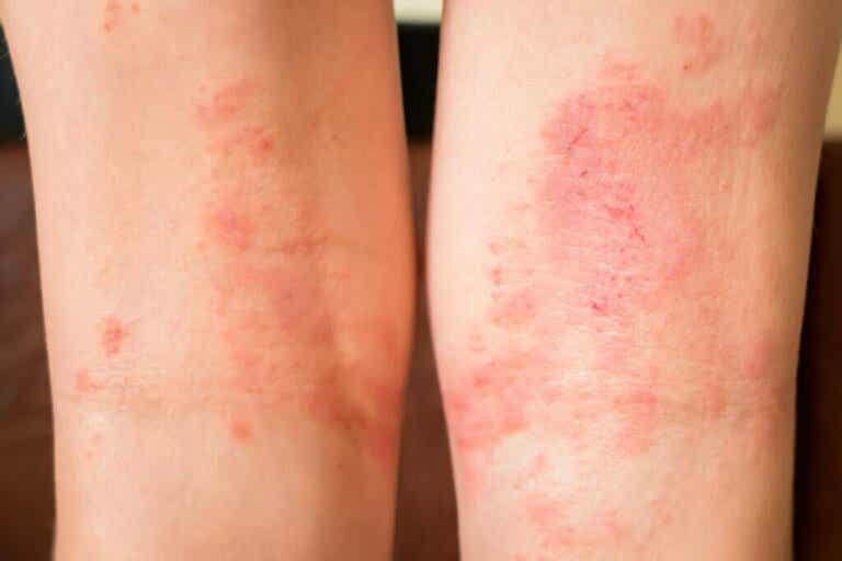 Sintomas de anafilaxia