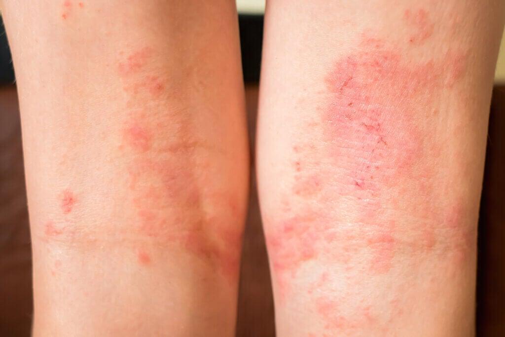 Sintomi dello shock anafilattico: come riconoscerli
