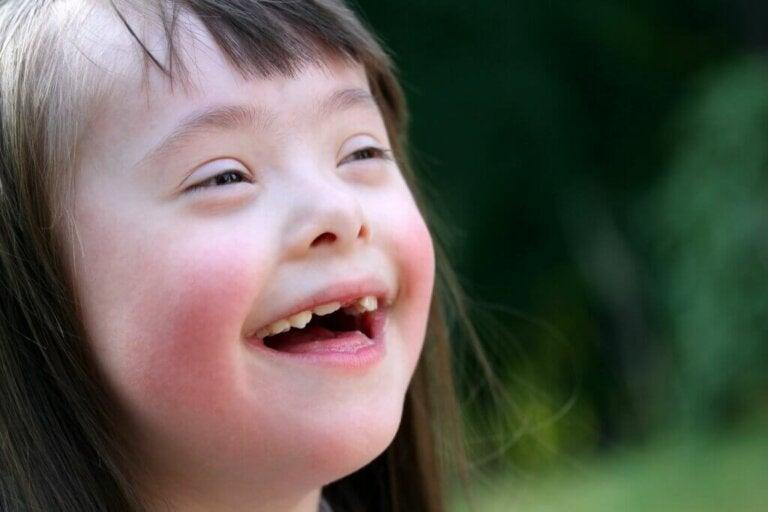 Sintomas da síndrome de Down
