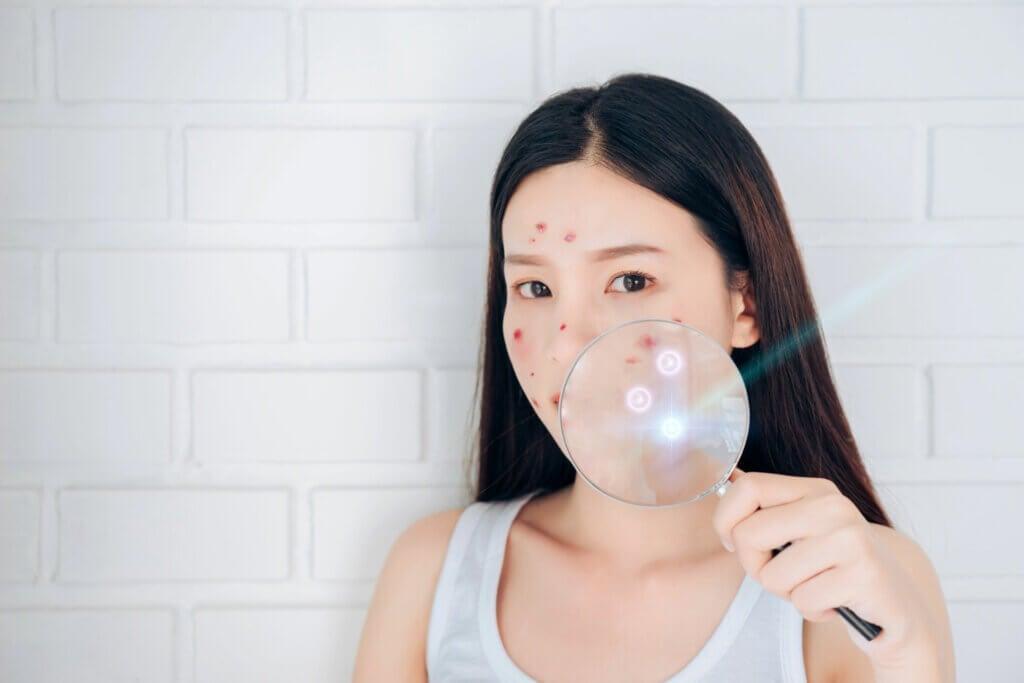 Iperpigmentazione post-infiammatoria e acne: che fare?