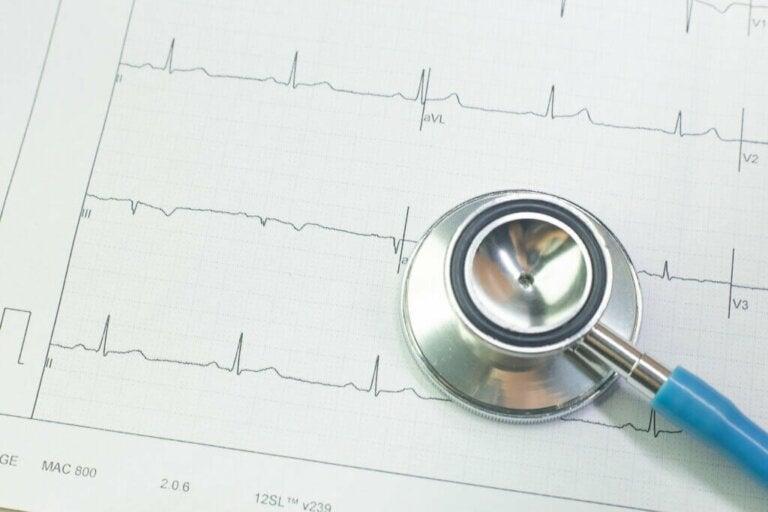 What Is Bradycardia?
