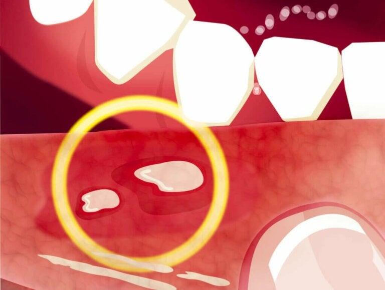 In che modo la celiachia influisce sulla salute orale?