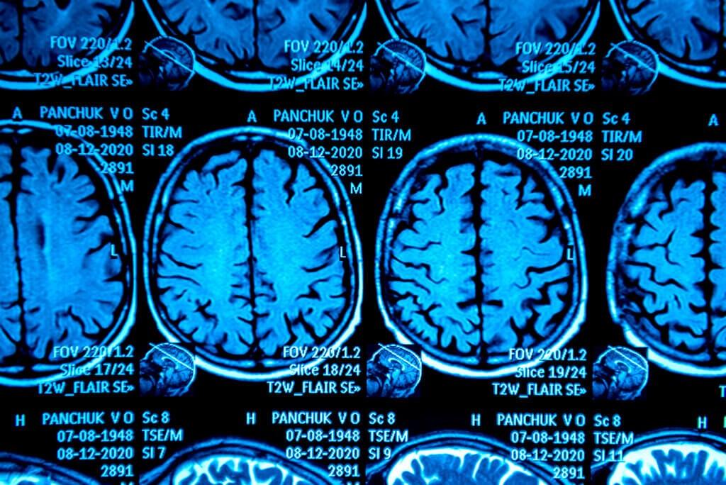 Tomografía cuando se diagnostica enfermedad de Alzheimer.