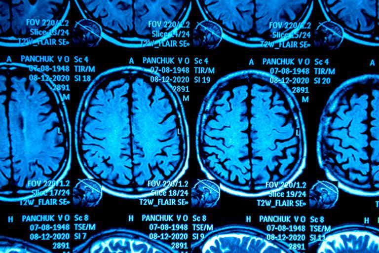 Pseudotumor cerebral