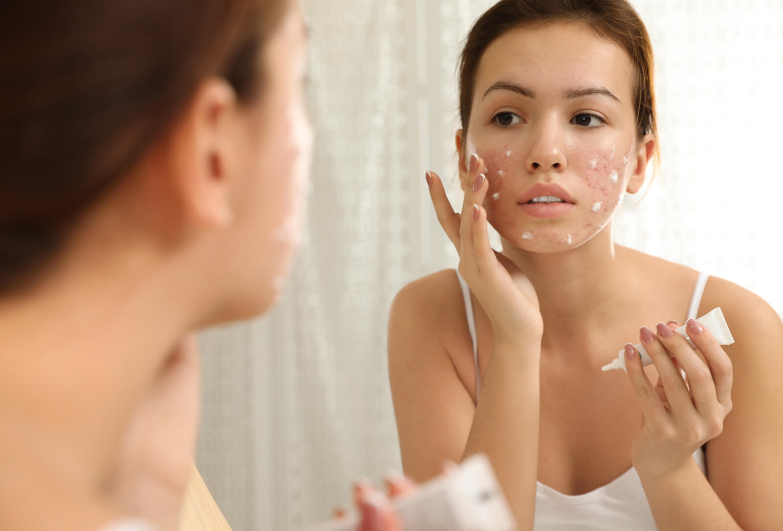 Acne pré-menstrual pode ser tratada com cremes.