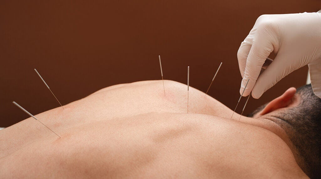 Agopuntura per la fibromialgia: ecco cosa dice la scienza