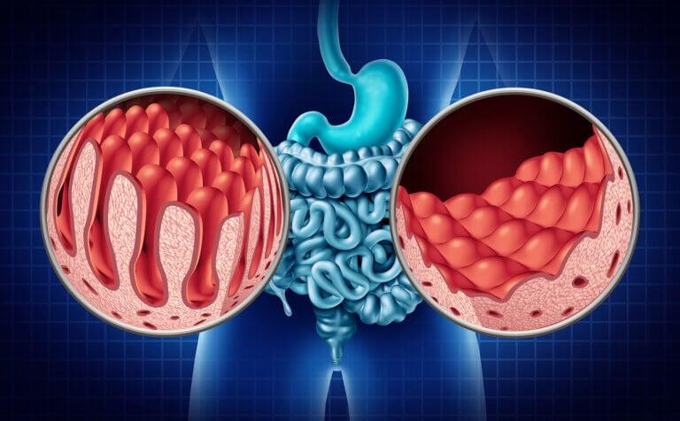 Tipos de celiaquía y sus síntomas