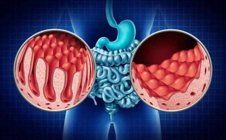 Tipi di celiachia e loro sintomi