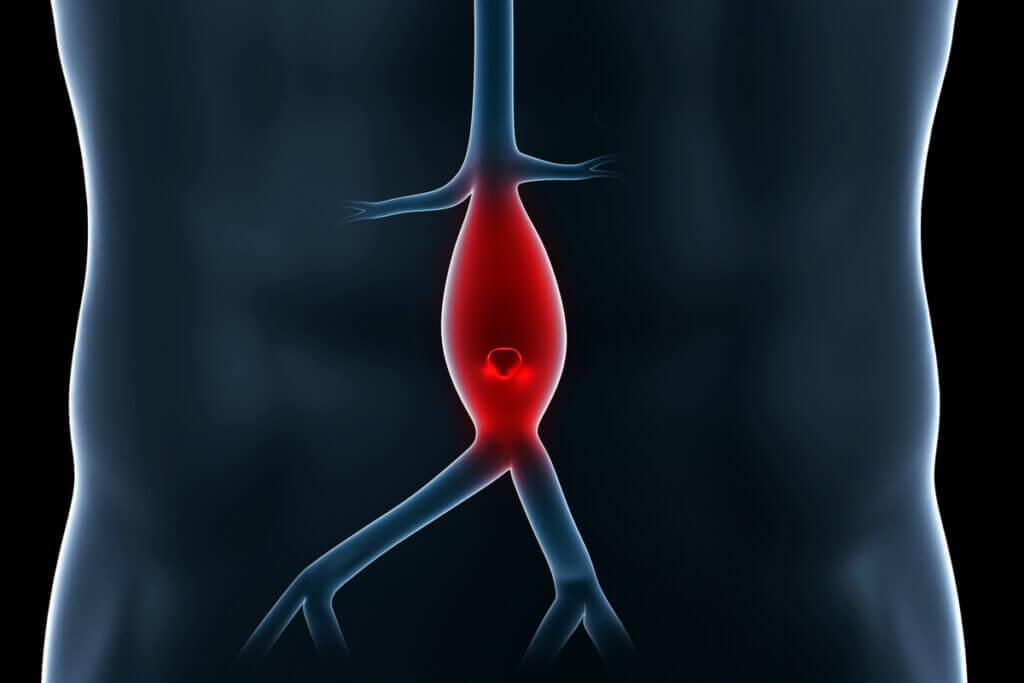 Apesar das disparidades, os dois tipos de vasos sanguíneos são essenciais para o entender o funcionamento do sistema circulatório