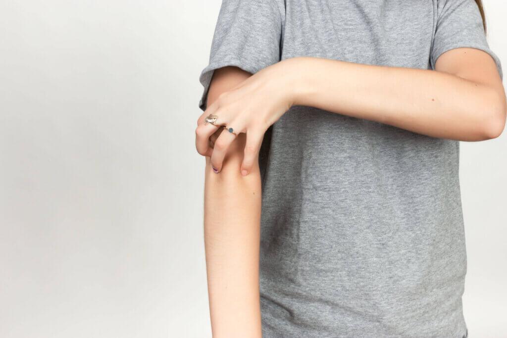 A escabiose é uma doença de pele causada pelo ácaro parasita Sarcoptes scabiei. Estima-se que afete 300 milhões de pessoas em todo o mundo.