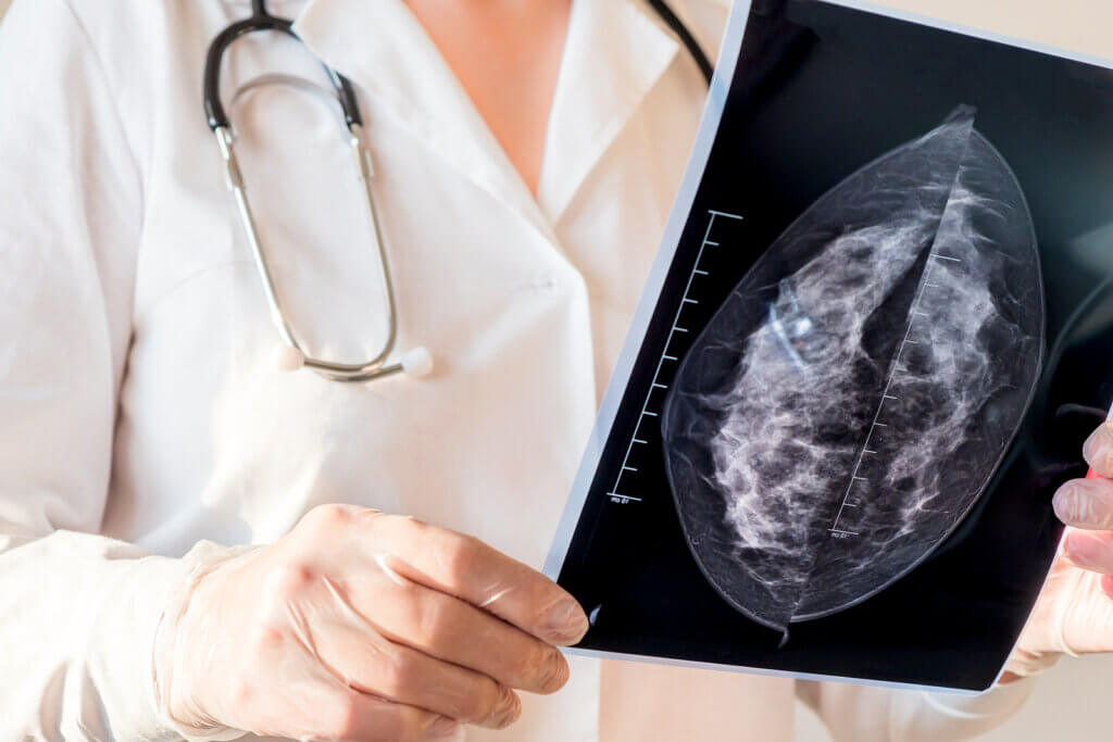 The Prevention of Breast Cancer