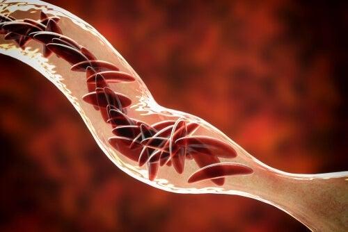 Anémie falciforme: symptômes, diagnostic et traitements