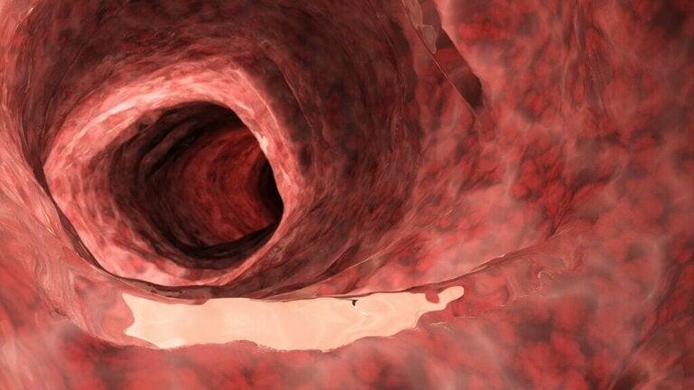 Diferenças entre colite ulcerosa e doença de Crohn