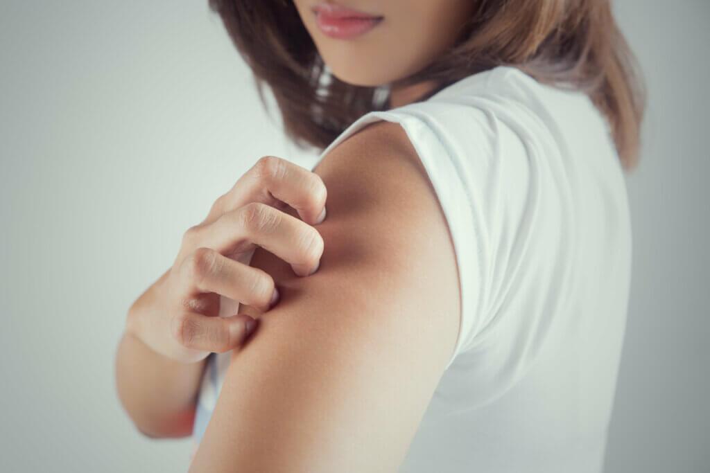 Qu'est-ce que la teigne? Causes, symptômes et traitement