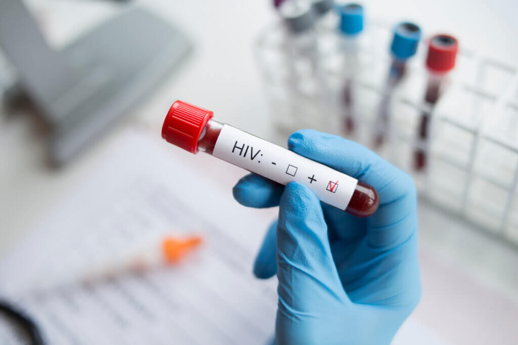HIV Causes and Risk Factors