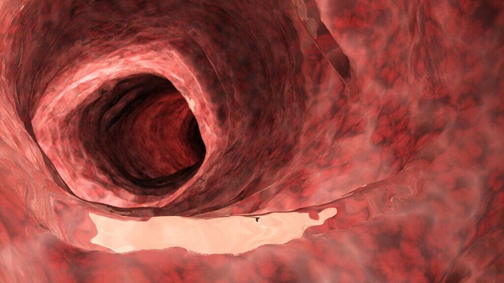 Diferencias entre la colitis ulcerosa y la enfermedad de Crohn