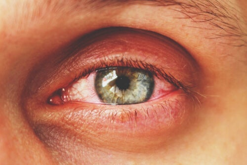 Conjunctivitis: All You Need to Know