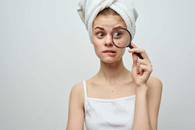 Segni e sintomi dell'acne