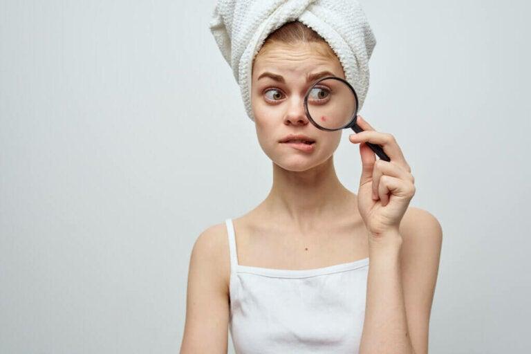 Sinais e sintomas da acne
