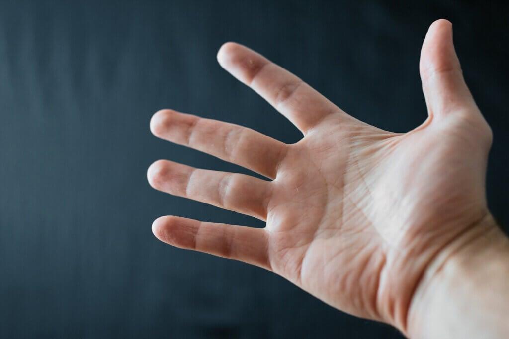 Qu'est-ce que la sclérodermie? Causes, symptômes et diagnostic