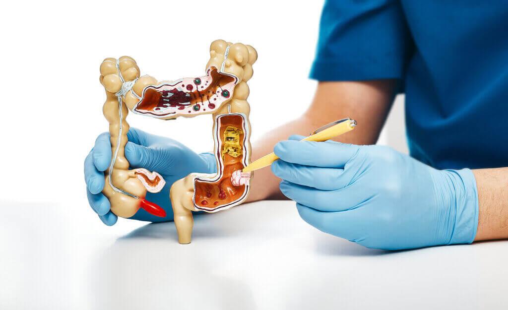Diferenças entre o intestino delgado e o intestino grosso